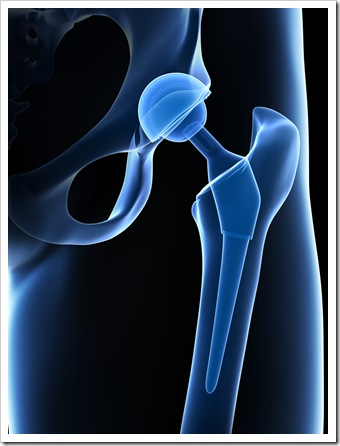 Back Pain Amarillo TX Joint Replacement
