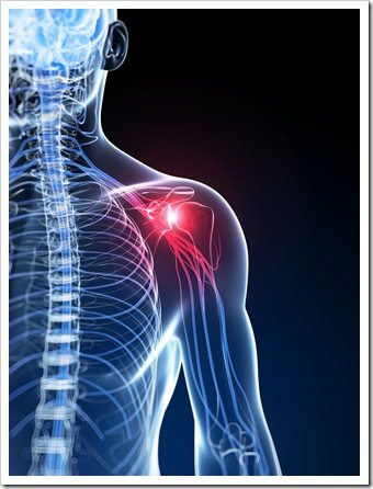Shoulder Pain Columbus OH Rotator Cuff Syndrome
