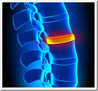 Herniated Disc and Back Pain Ventura CA