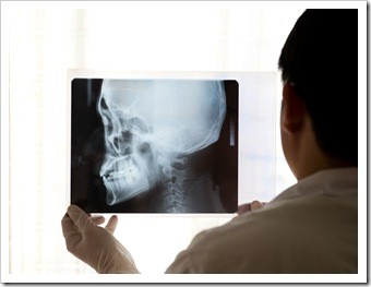 Pottstown TMJ Jaw Pain Treatment