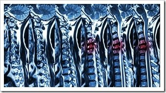 Back Pain Rehab Greenville SC Spinal Surgery